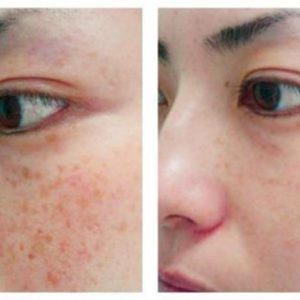 Laser Brown Spot Treatments