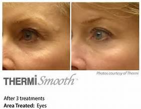 ThermiSmooth  Skin Tightening for fine lines and wrinkles around eyes OR mouth (4 treatments)